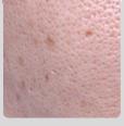 피지분비 과다형 피부 이미지