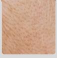모공성 흉터형 피부 이미지