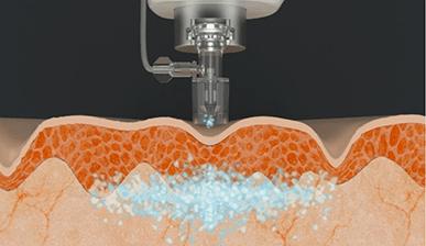 에어젯 피부 진피층 시술 이미지